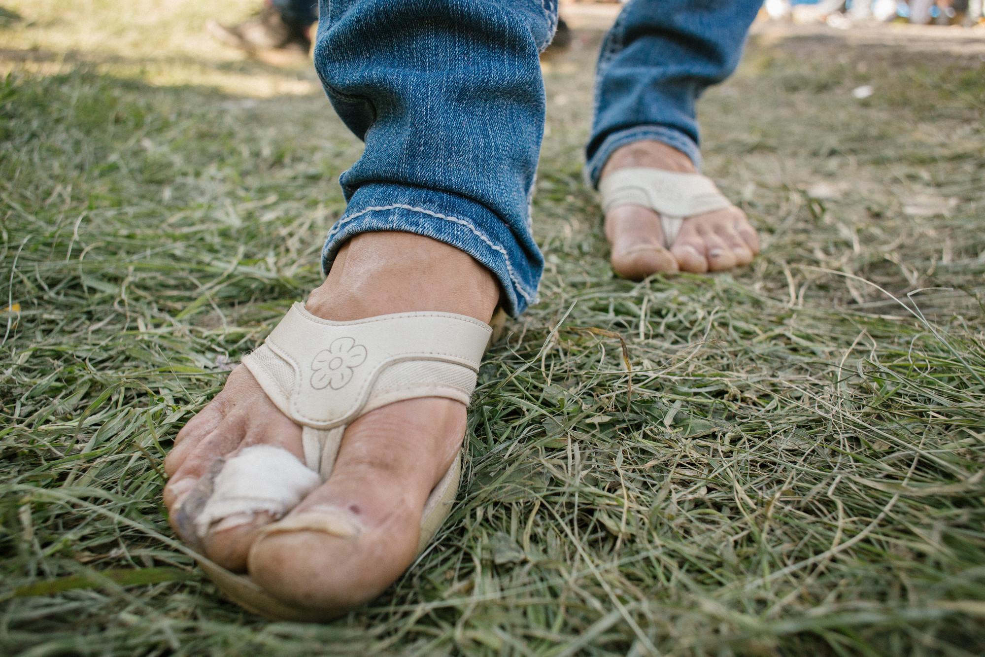 Lorenas Feet | © Sergio Ortiz/Amnesty International